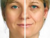 Bioplastia-Rejuvenescimento-Facial-Tratamento-Estetico